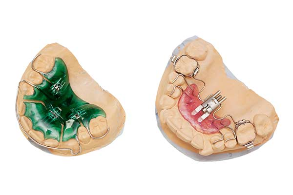 Palatal Expander Device
